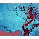 A1 Poster. Blocked Vein Brain Burst Aneurysm Cerebral Blood