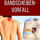 Akut-Hilfe: Bandscheibenvorfall!