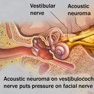 Acoustic neuroma | PANCE and PANRE Content Blueprint