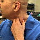 How to self treat sternocleidomastoid muscle trigger points   trigger point release