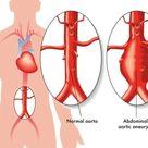 Abdominal Aortic Aneurysm AAA   familydoctor.org