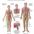 1000 Piece Puzzle. Pulmonary embolism, pathway of embolus to the