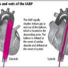 Intra-aortic balloon pump counterpulsation is frequently used as therapy for patients with refractory left ventricular heart failure or for other indications. Benefits of IABP therapy include increased cardiac output, coronary blood flow, and systemic perfusion pressure and decreased afterload and myocardial oxygen demands.
