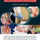 Best Doctor For Neuroma Treatment In New York   Get a Free Consultation