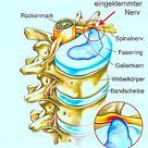 Ischiasnerventzündung, Symptome, Heilmittel und Behandlung