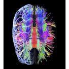 10 inch Photo. White matter fibres and brain, artwork
