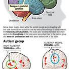 The Autistic Brain — Autism Radio