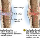 There are many types of bone fractures, but most heal in the same way; normally in 8 to 12 weeks. Closed reductions (displaced) and fractures (nondisplaced) do not require surgery to fix, while open reductions and fractures do require surgery to fix. 1. Fracture hematoma 2. Soft callus 3. Hard callus 4. Remodeling in 3 to 4 months. The picture gives detailed processes for each step. (Picture obtained from McGraw-Hill Connect).
