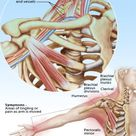 Thoracic Outlet Syndrome Symptoms, Treatment & Tests