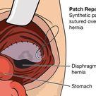 Pediatric Surgery - Congenital Diaphragmatic Hernia by drldf