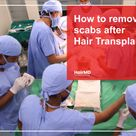 Hair Transplant Scabs How to Get Rid of Scabs Post Hair Transplant