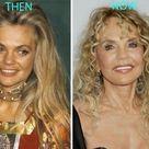 Plastic Surgery Photos
