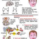 Head and Neck - Nerves - Cranial - VII lesions