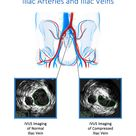 May-Thurner Syndrome Treatment Using IVUS Ultrasound