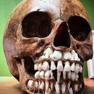 This is a photo of a child's skull shown with adult teeth waiting to protrude and replace baby teeth.