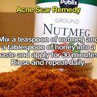 Scar Remedies