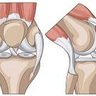 Knee Ligaments : Anatomy, Function & Injuries - Knee Pain Explained