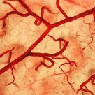 Small intestine blood vessels, light micrograph - Stock Image - C046/3676