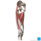 Gracilis muscle Musculus gracilis