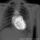 Heart and lungs, chest X-ray composite - Stock Image - C011/5758