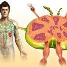 Lymph Nodes Are More Than Bumps Under Your Skin