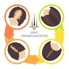 Hair Transplant in Thane, FUE Hair Transplant Clinic in Thane