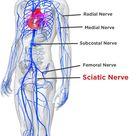 Sciatica & Pinched Nerve Pain