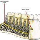 Dental Malpractice Central | Inferior Alveolar Nerve Anatomy