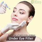 Under Eye Filler!