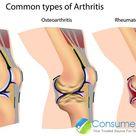 Common Types of Arthritis: Osteoarthritis, Rheumatoid Arthritis & More