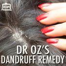 Dandruff Remedy
