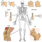 Arthritis: Causes, types, and treatments