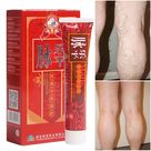 Varicose Veins Treatment Cream Ointment - Vasculitis Angiitis Phlebitis, Spider Veins Pain Remedy