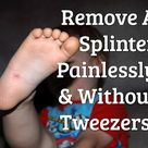 Remove A Splinter