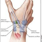 Evaluation and Diagnosis of Wrist Pain A Case Based Approach