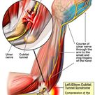 Kleiser Therapy - Hand, Arm and Shoulder Specialists