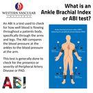 Ankle Brachial Index Test