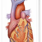 Box Canvas Print. Front view of a normal heart and its cornonary