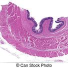 Human pyloric mucosa. Pyloric mucosa of a normal human stomach stained with h&e (left) and pas (right). the gastric pits are