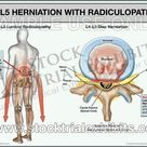 L4 L5 Herniation with Radiculopathy   Male   Large 30\ x 40\ / 1 Printed Trial Exhibit Board