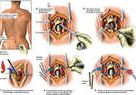 L4, L5 Laminectomy, Discectomy and Spinal Fusion