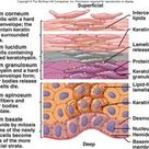 Lecture 7: Integumentary System