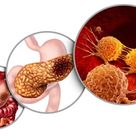 Know more about Pancreatic Syndrome – Types, Symptoms, Causes and Treatment