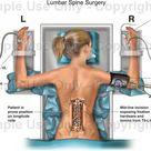 Lumbar Spine Surgery - Medical Illustration, Human Anatomy Drawing, Anatomy Illustration