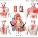 Abbildung Herzinfarkt