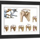 Large Framed Photo. Anatomy of acromioclavicular joint rupture