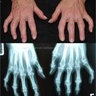 Osteophyte