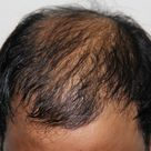 Hair Clinic in Pune   Best Hair Specialist in Pune