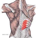 Schmerzen im mittleren Rücken: Eine Ursache & 5 simple Übungen