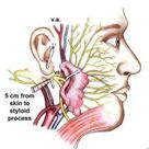 Facial Nerve Anatomy: Overview, Embryology of the Facial Nerve, Central Connections